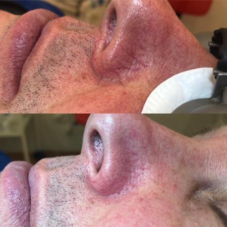 Удаление сосудов на лице фото